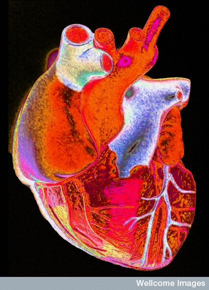 Enhanced image of a human heart Credit: Gordon Museum. Wellcome Images